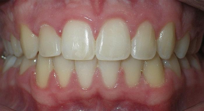 Common Orthodontic Issues Brazeau Orthodontics